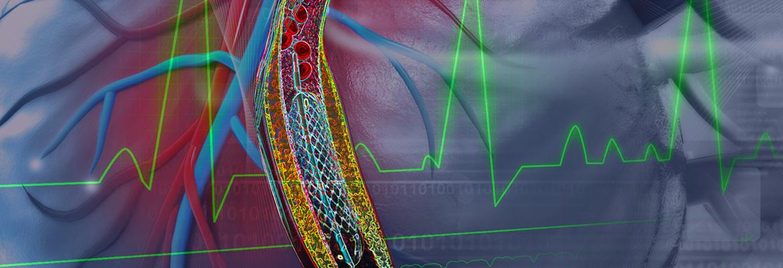 Philadelphia, Israeli Team Refining Cardiac Devices